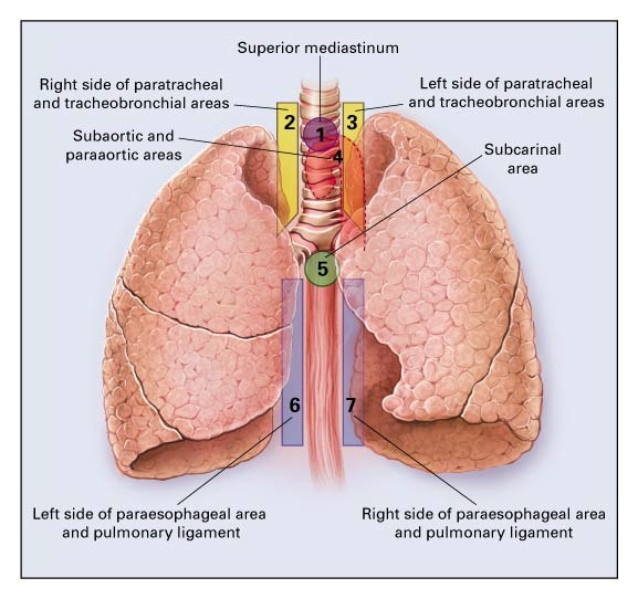 Preoperative Staging Of Nonsmall Cell Lung Cancer With Positron