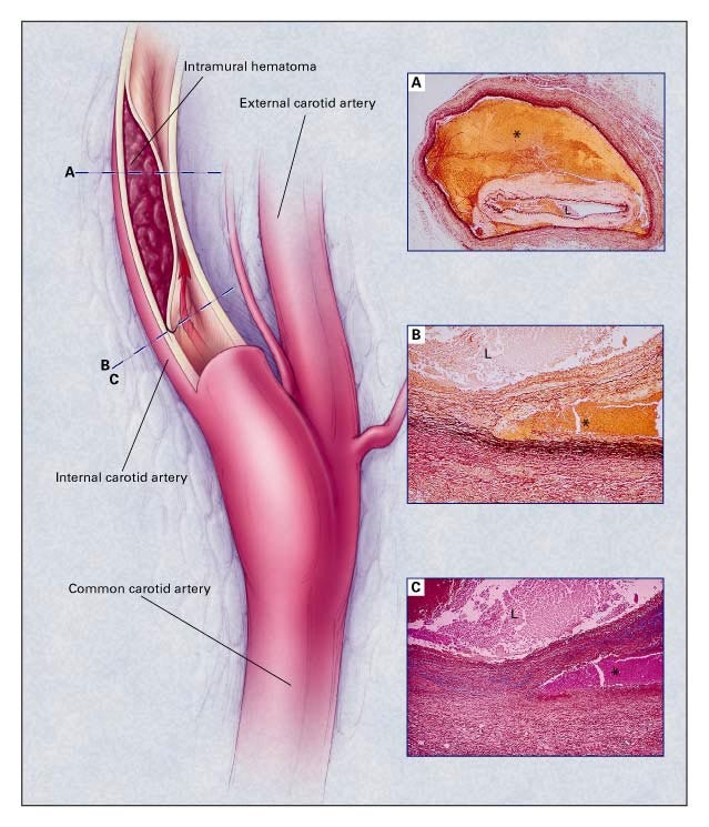 Spontaneous Dissection Of The Carotid And Vertebral Arteries Nejm