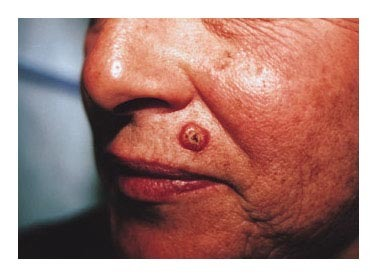 Cutaneous Squamous-Cell Carcinoma | NEJM