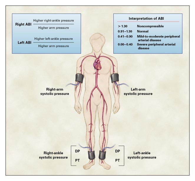 Medical Treatment of Peripheral Arterial Disease and Claudication | NEJM