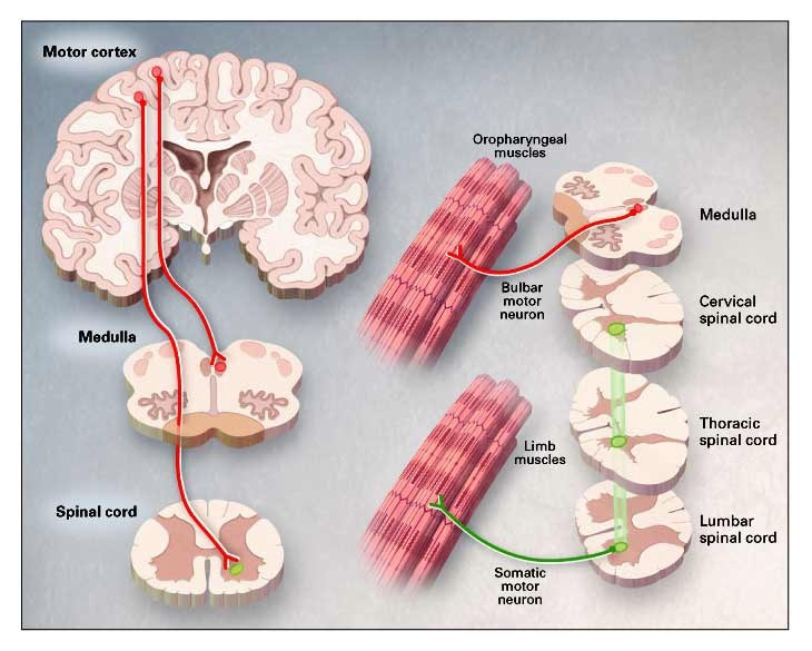 an introduction to the issue of amyotrophic lateral sclerosis or motor neuron disease Amyotrophic lateral sclerosis (als), also known as lou gehrig disease, motor neuron disease, or charcot disease, is an adult-onset, progressive neurodegenerative disorder involving the large motor neurons of the brain and the spinal cord.