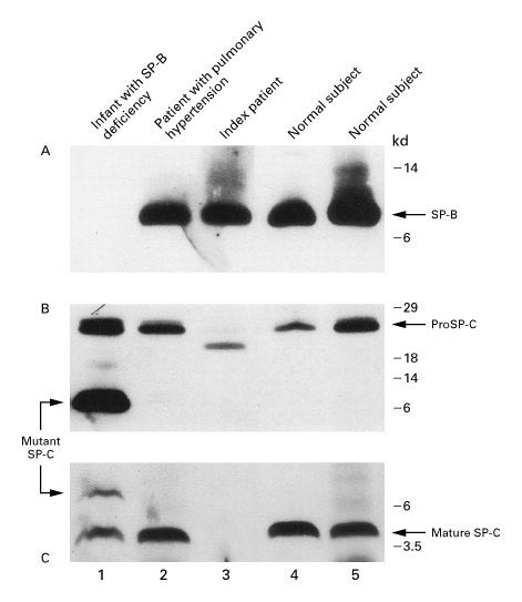 A Mutation in the Surfactant Protein C Gene Associated with