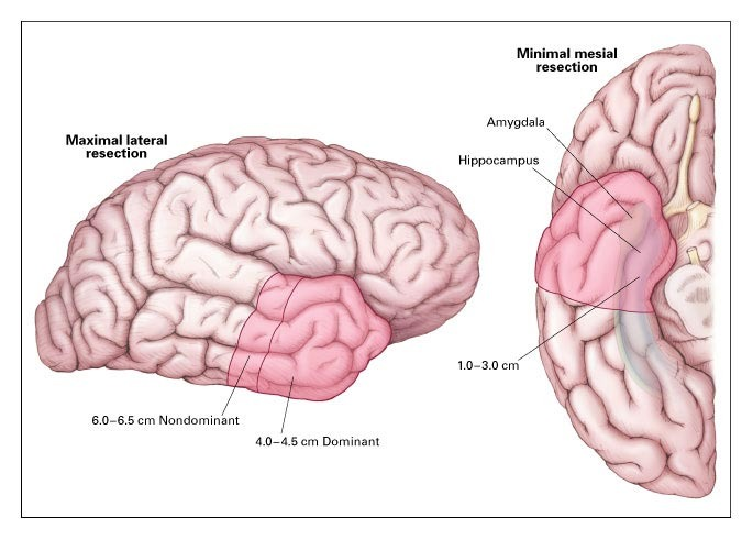 A Randomized Controlled Trial Of Surgery For Temporal Lobe Epilepsy