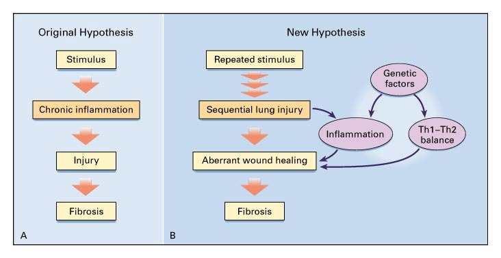 figure 2  original and new hypotheses for the pathogenesis of idiopathic pulmonary  fibrosis