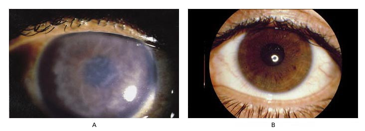 Interstitial Keratitis as the Initial Expression of ...