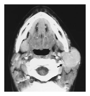 Case 19-2002 — A 13-Year-Old Girl with a Mass in the Left