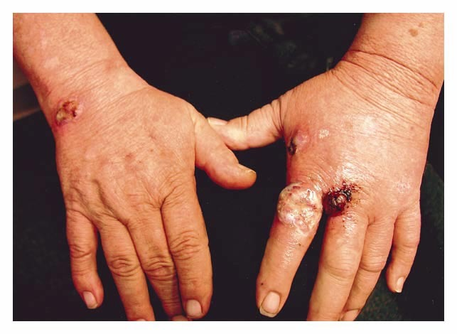 Figure 1 Ulcerated Erythematous Nodules On The Dorsal Aspect Of The Hands And Fingers