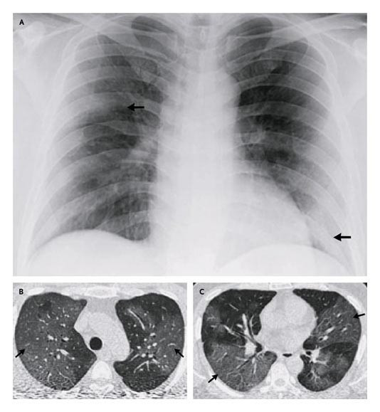 sars severe acute respiratory syndrome and 2018-06-11 sars, or severe acute respiratory syndrome, is the disease caused by sars coronavirus it causes an often severe illness marked initially by systemic symptoms of muscle pain, headache, and fever, followed in 2–14 days by the.