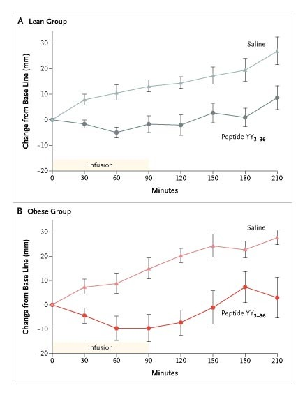 cf35f36fa395e Appetite Scores for the Lean Subjects (Panel A) and the Obese Subjects  (Panel B).