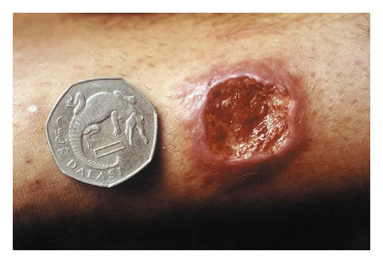 A Medical Mystery Painless Ulcers Nejm