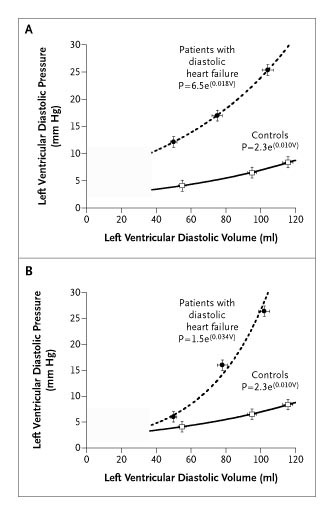 Diastolic Heart Failure — Abnormalities in Active Relaxation and