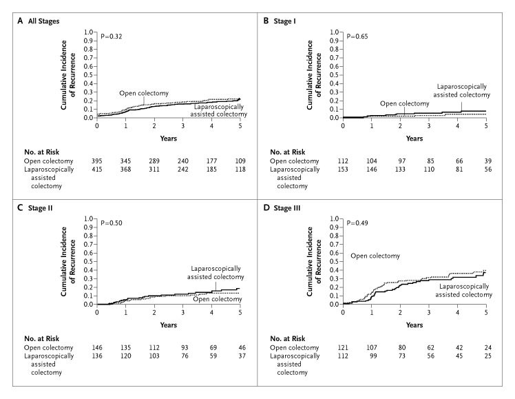 A Comparison Of Laparoscopically Assisted And Open Colectomy For Colon Cancer Nejm