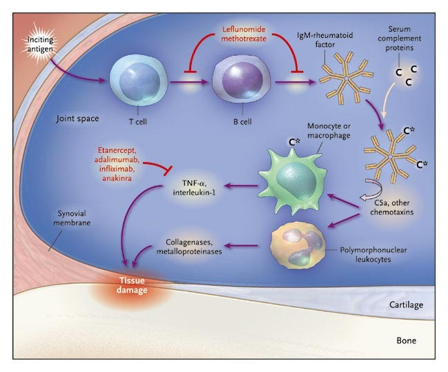 New Drugs For Rheumatoid Arthritis Nejm