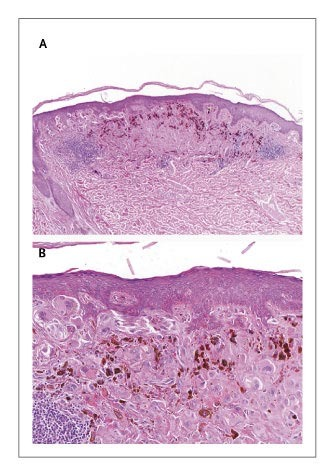 Case 7-2004 — A 48-Year-Old Woman with Multiple Pigmented