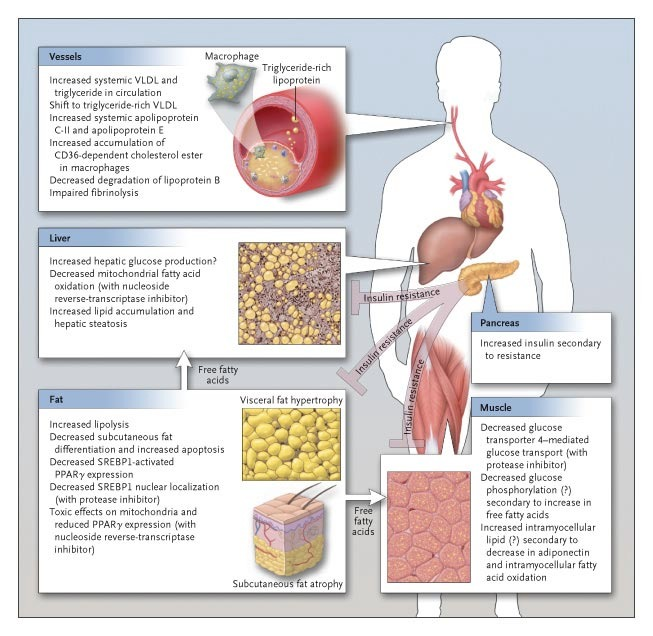 Cardiovascular Risk and Body-Fat Abnormalities in HIV-Infected