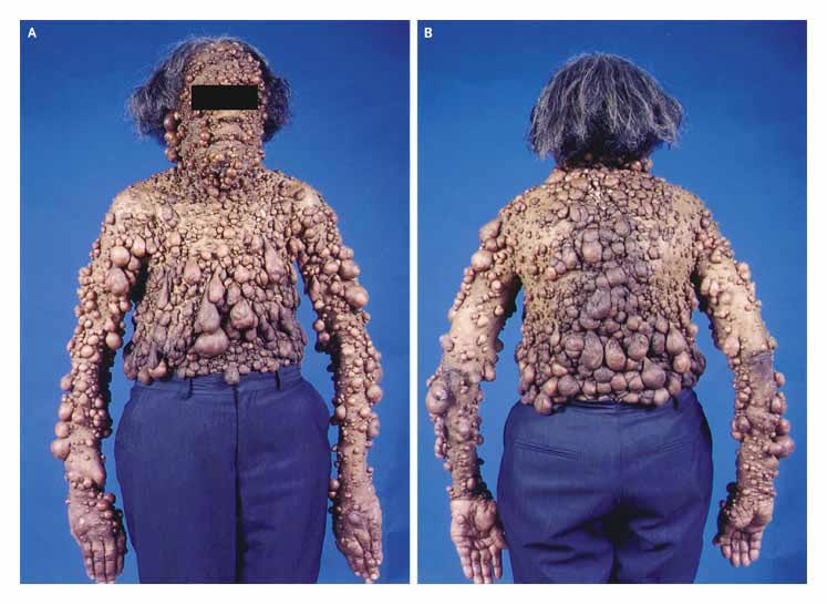 breast cancer review article nejm