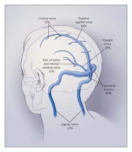 Thrombosis Of The Cerebral Veins And Sinuses Nejm