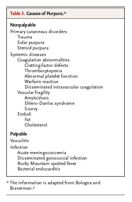 Case 14-2005 — A 38-Year-Old Man with Fever and Blurred Vision   NEJM
