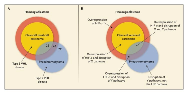 Renal-Cell Carcinoma | NEJM