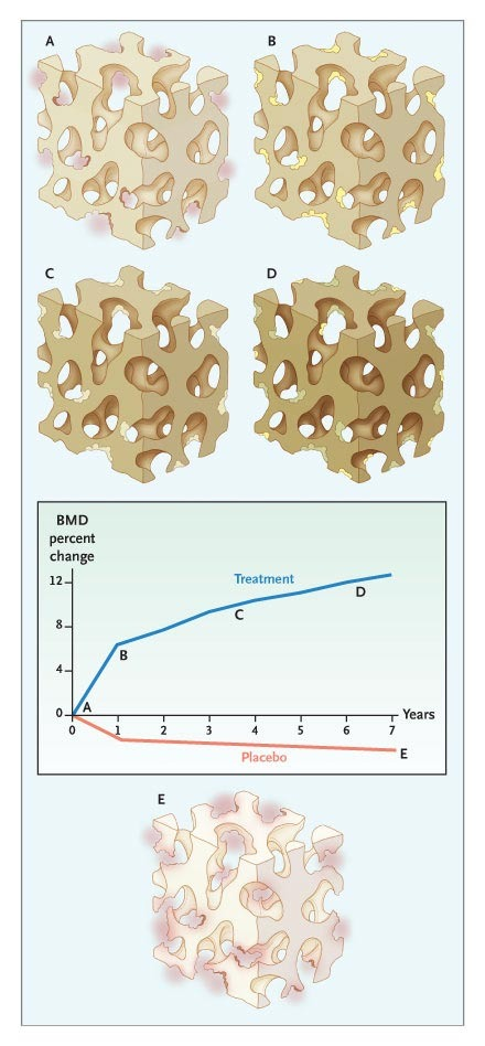 Bone Quality — The Material and Structural Basis of Bone Strength