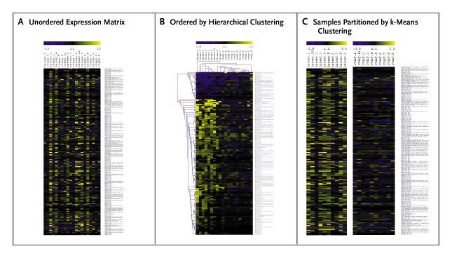 Microarray Analysis and Tumor Classification | NEJM
