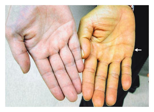 The hand in Diabetes Mellitus - type 2!
