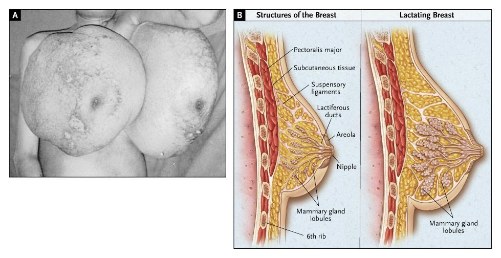 Benign Diffuse Breast Hyperplasia During Pregnancy Nejm
