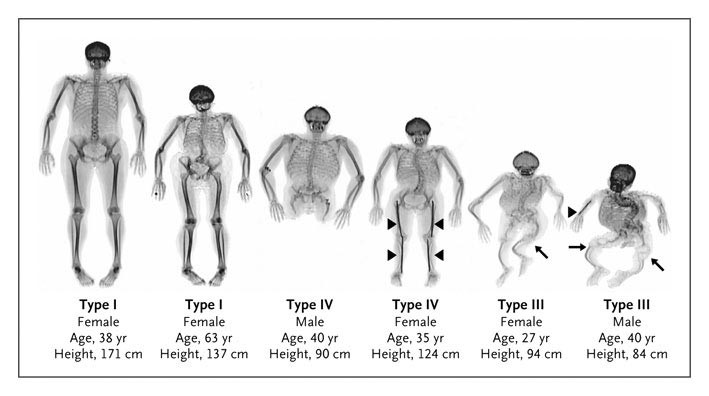 Adults with Osteogenesis Imperfecta — NEJM