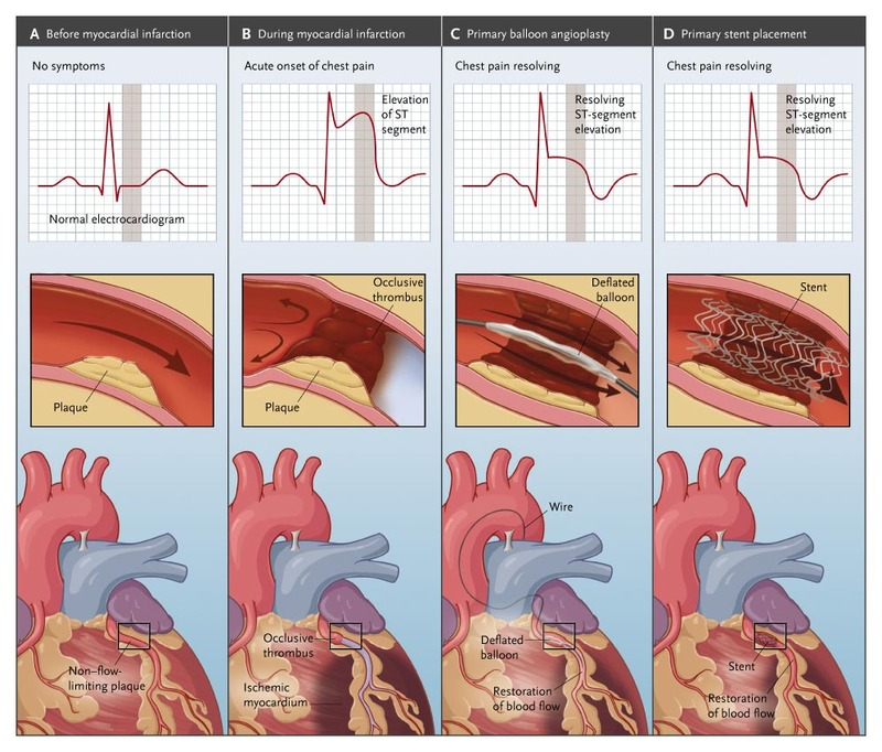 Primary PCI for Myocardial Infarction with ST-Segment