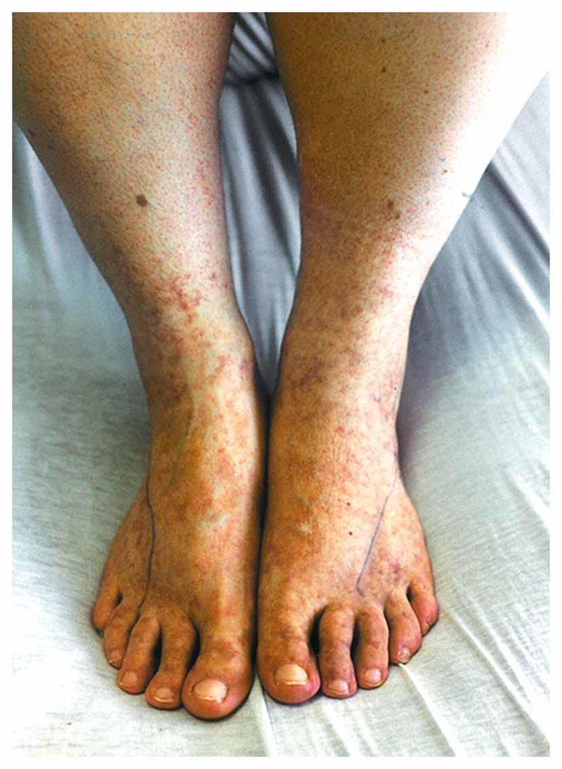 The legs swell. Cause of pathology