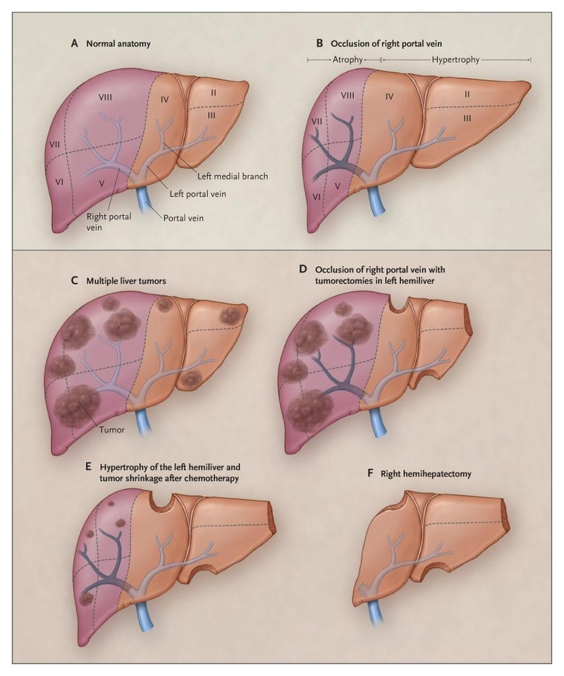 Strategies For Safer Liver Surgery And Partial Liver Transplantation