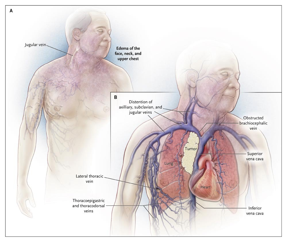 Superior Vena Cava Syndrome with Malignant Causes | NEJM