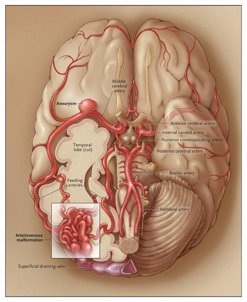 Arteriovenous Malformations of the Brain | NEJM