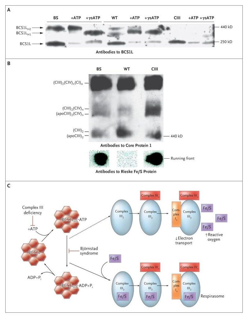 Missense Mutations In The Bcs1l Gene As A Cause Of Bjrnstad 2000 Rm 250 Engine Diagram Mitochondrial Extraction