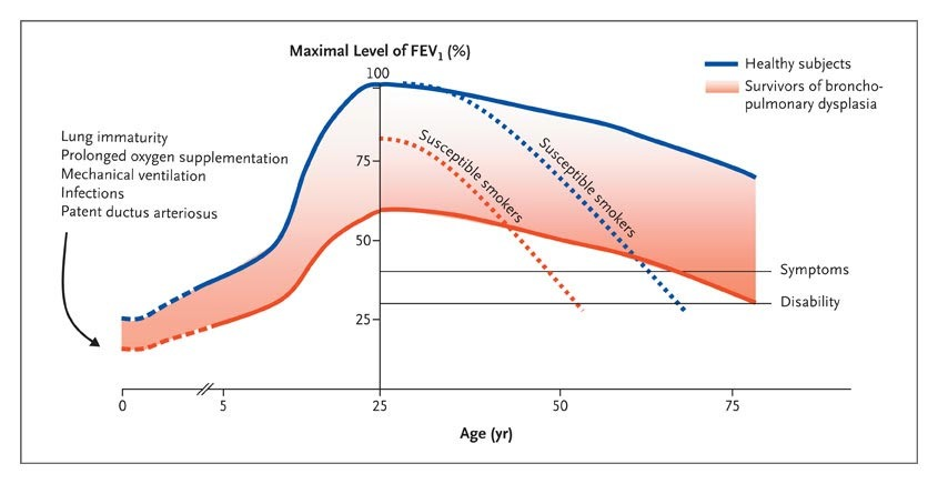 Chronic lung disease after premature birth nejm figure 4 theoretical model of changes in fev1 in survivors of bronchopulmonary dysplasia and healthy subjects according to age ccuart Gallery