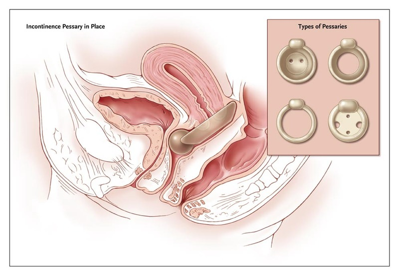 Urinary Stress Incontinence in Women | NEJM