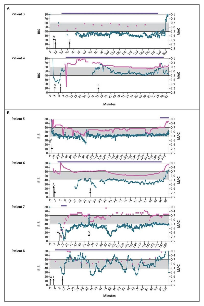 Anesthesia Awareness and the Bispectral Index | NEJM