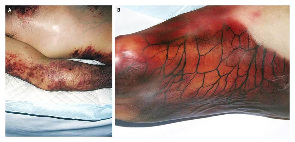 Retiform Purpura | NEJM