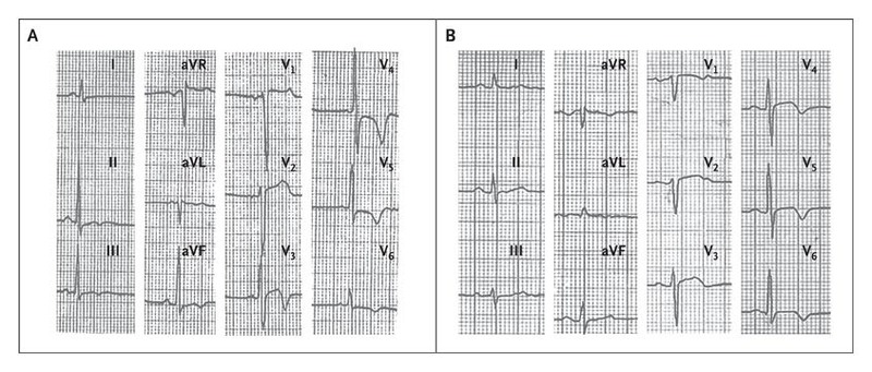 Outcomes in Athletes with Marked ECG Repolarization
