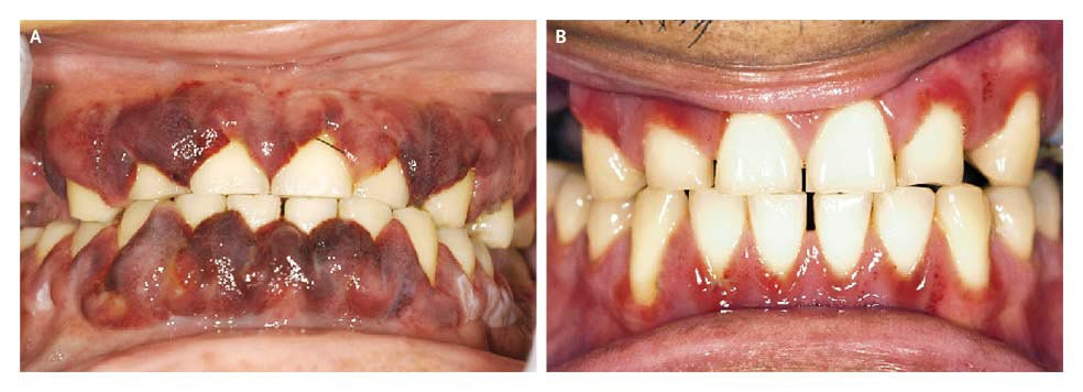 Leukemic Gingival Infiltration Nejm
