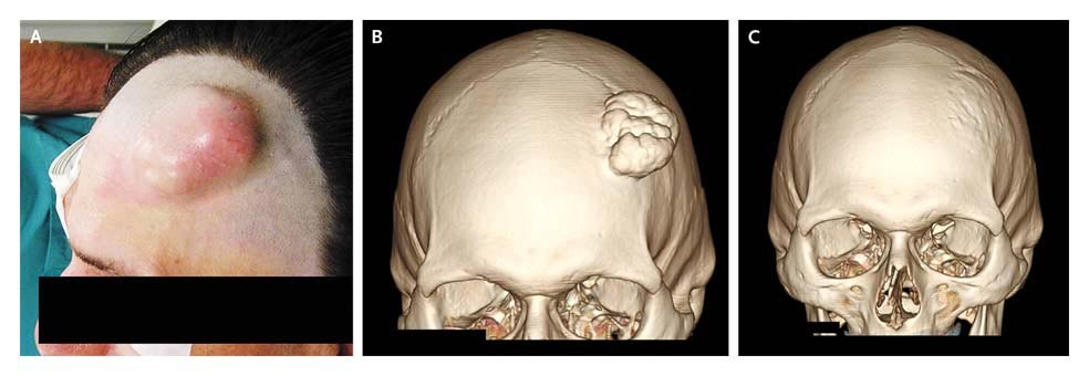 Calcified Hematoma of the Skull | NEJM