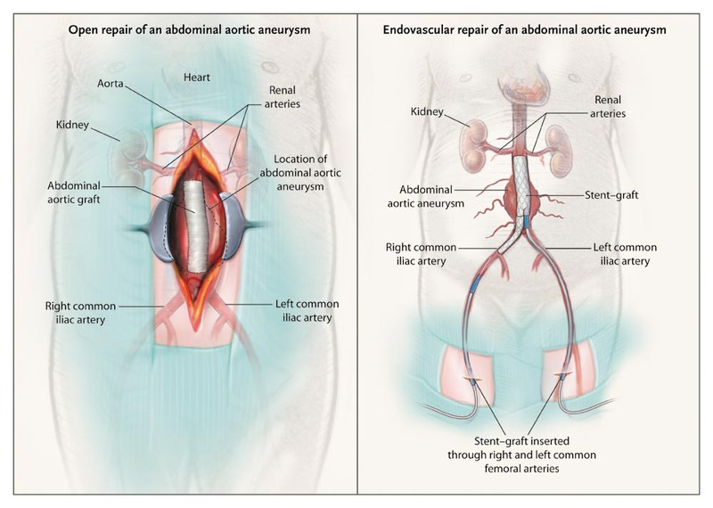Endovascular vs. Open Repair of Abdominal Aortic Aneurysms in the ...