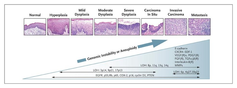 Recent Advances in Head and Neck Cancer   NEJM