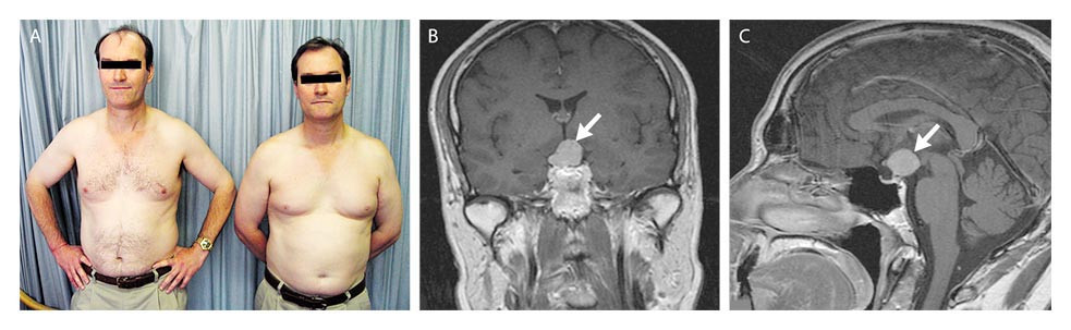 Hypogonadism Due to Pituicytoma in an Identical Twin
