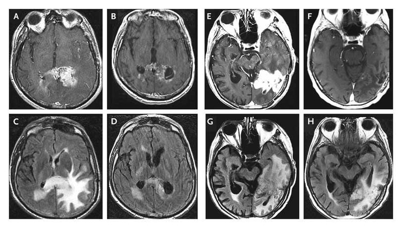 Malignant Gliomas in Adults | NEJM