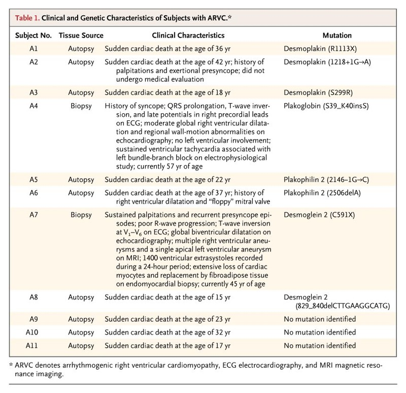The Value Of Correct Diagnosis >> A New Diagnostic Test For Arrhythmogenic Right Ventricular