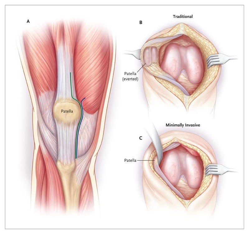 Minimally Invasive Total Knee Arthroplasty For Osteoarthritis Nejm