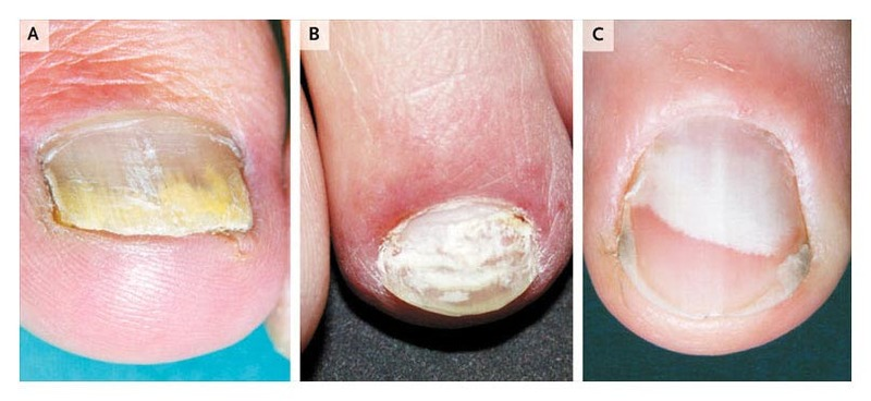 Patterns Of Fungal Nail Infection