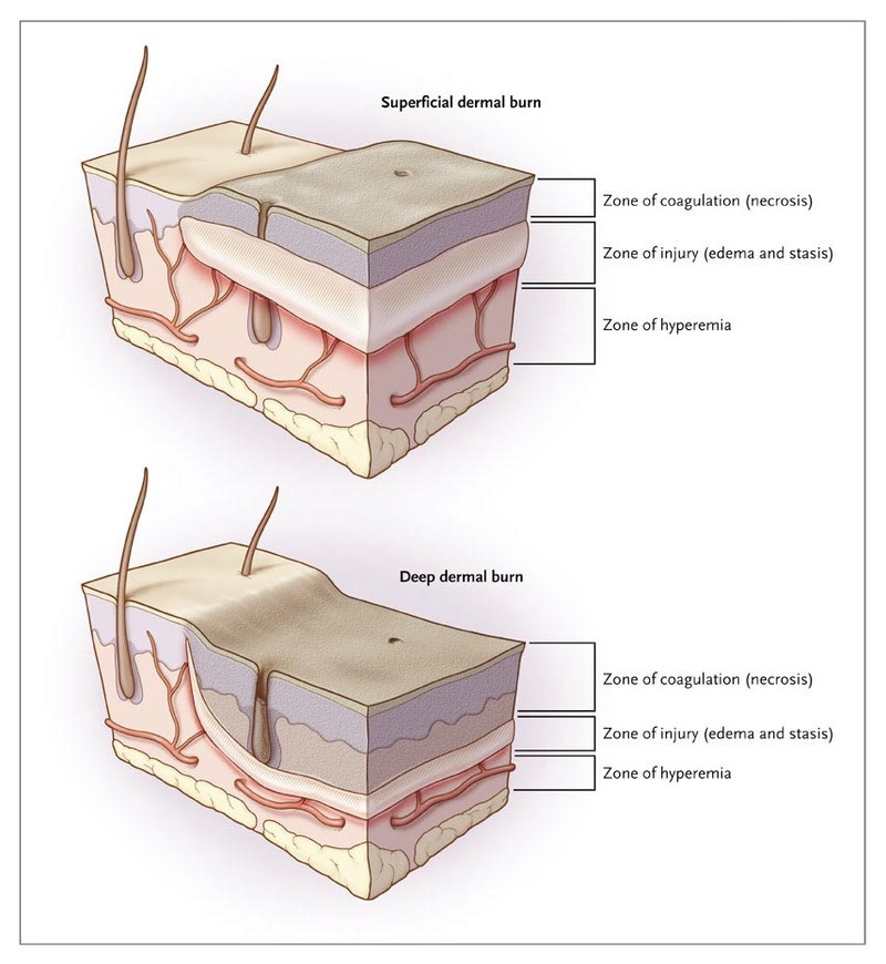 zones of injury in superficial and deep dermal burns