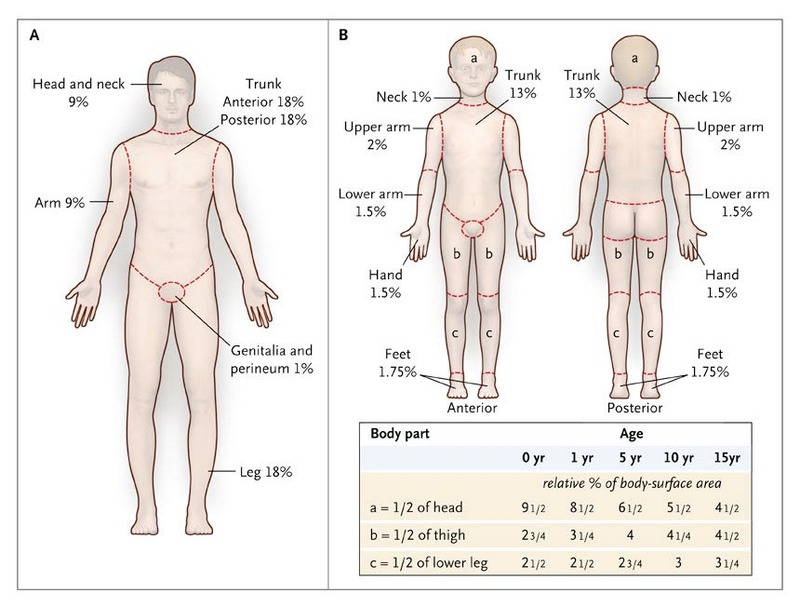 Excision And Skin Grafting Of Thermal Burns Nejm
